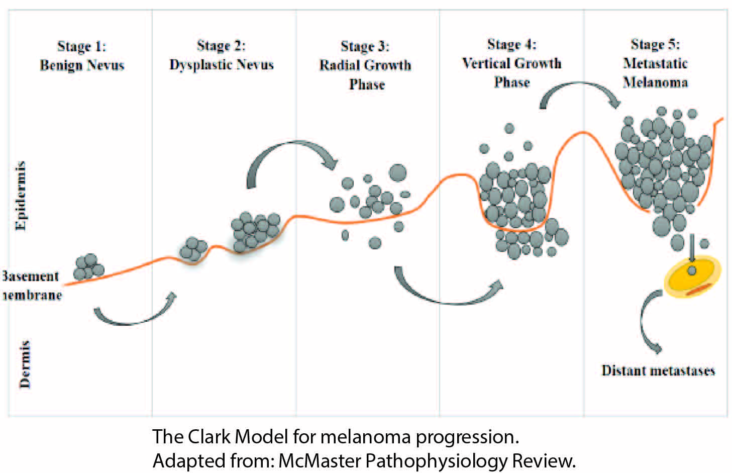 When skin cells go rogue: The onset of melanoma | The Petri Dish